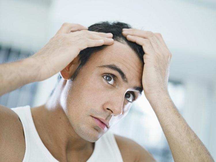 Nam giới rụng tóc nhiều do suy giảm Testosterone trong cơ thể