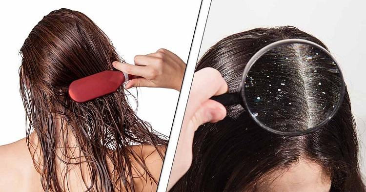 Sử dụng sản phẩm kích thích mọc tóc có thể gây ngứa, giàu nếu không phù hợp với da đầu