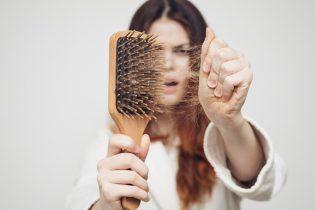 Viêm nang lông quá nặng có thể gây rụng tóc vĩnh viễn