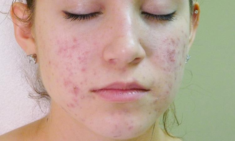 Viêm nang lông ở mặt gây ảnh hưởng lớn đến vấn đề thẩm mỹ