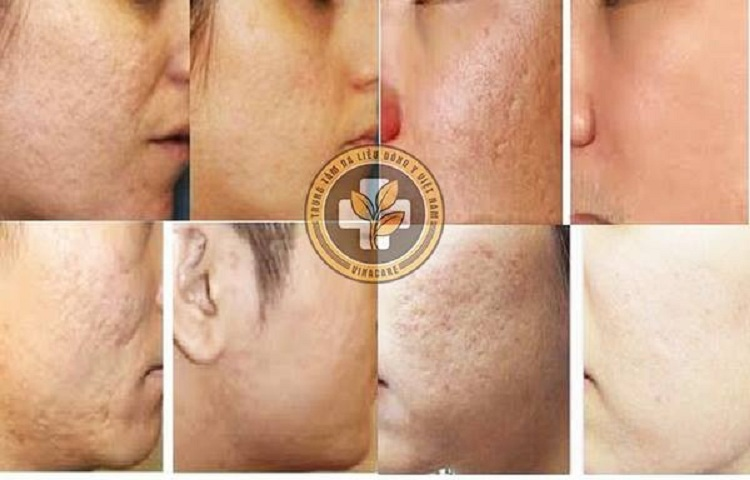 Liệu pháp tăng sinh Collagen mang lại hiệu quả sau một liệu trình thực hiện