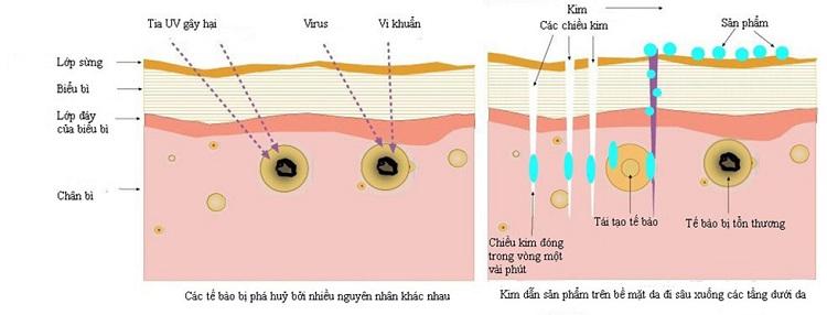 Vi Phẫu Biểu Mô Sinh Học giúp xóa mờ sẹo, phục hồi da hư tổn hiệu quả