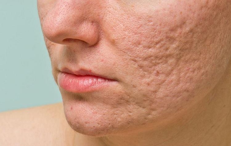 Tình trạng sẹo thâm, sẹo rỗ gây ảnh hưởng nhiều đến vấn đề thẩm mỹ