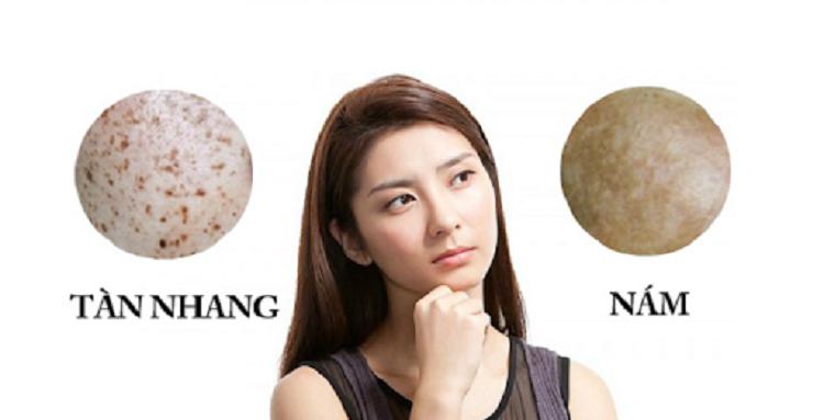 Nám và tàn nhang là hai tình trạng về da khác nhau