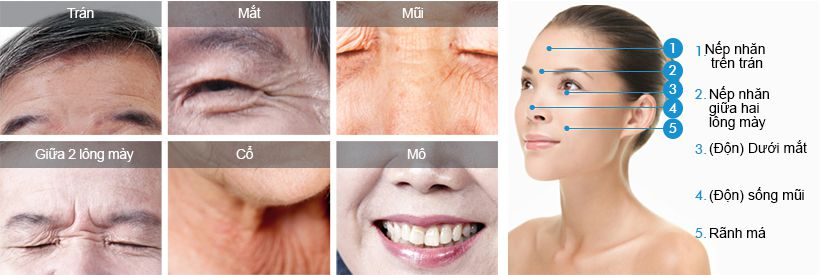 Phương pháp căng da 4 lớp - Peel giúp trẻ hóa làn da