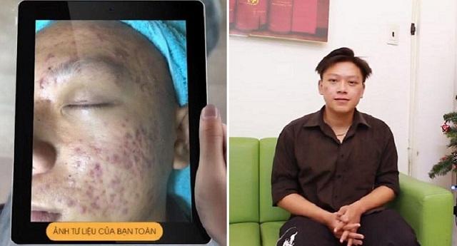 Bạn Đặng Công Toàn trước và sau hơn 3 tháng điều trị với bộ sản phẩm Hoàn Nguyên