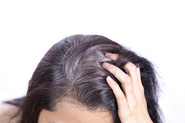 Bạc tóc gây ảnh hưởng nhiều đến vấn đề thẩm mỹ