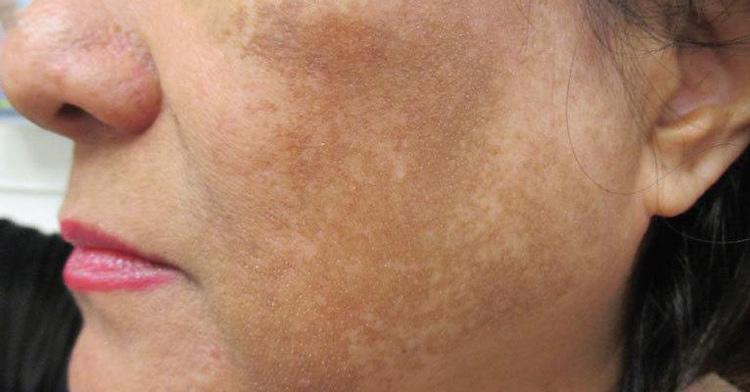 Dù đã điều trị bằng nhiều phương pháp nhưng tình trạng nám da của chị Yên vẫn không thuyên giảm (ảnh minh họa)