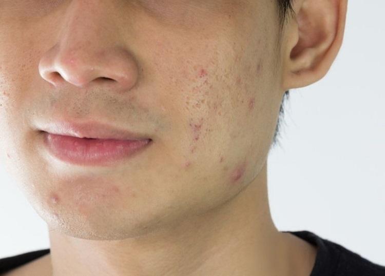 Khuôn mặt nhiều mụn khiến Tuấn trở nên kém tự tin (ảnh minh họa)