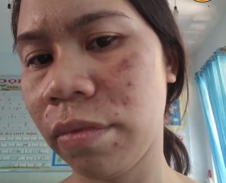 Tình trạng da của chị Nụ vẫn không cải thiện sau nhiều phương pháp điều trị