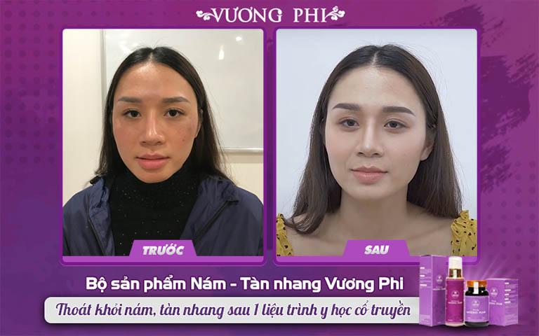 Kết quả điều trị nám, tàn nhang của chị Hương với Bộ sản phẩm Vương Phi