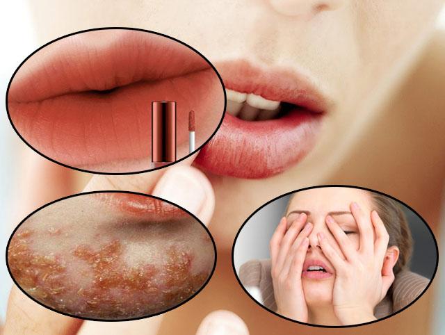 Các yếu tố bên trong và bên ngoài điều có thể là nguyên nhân gây ra chàm môi