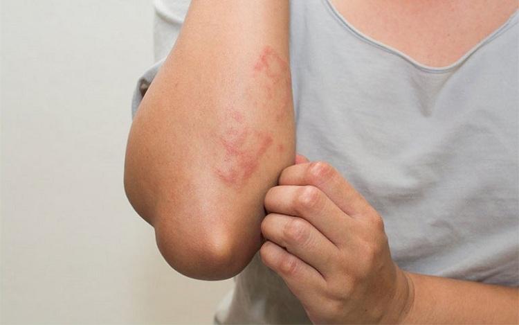 Triệu chứng bệnh gây ra nhiều cảm giác ngứa ngáy khó chịu