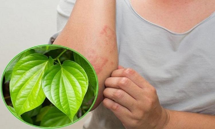 Trị viêm da bằng lá trầu không an toàn, không tác dụng phụ