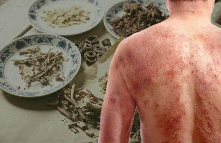 Đông y giúp loại bỏ chứng bệnh từ gốc