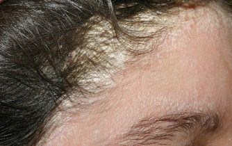 Vùng da đầu cũng là vị trí dễ bị mắc bệnh
