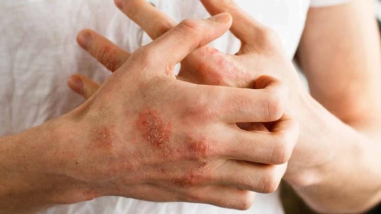 Bệnh lý này cần được điều trị đúng cách để phục hồi da hiệu quả