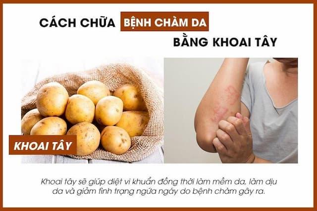 Cách chữa bệnh chàm bằng khoai tây hiệu quả