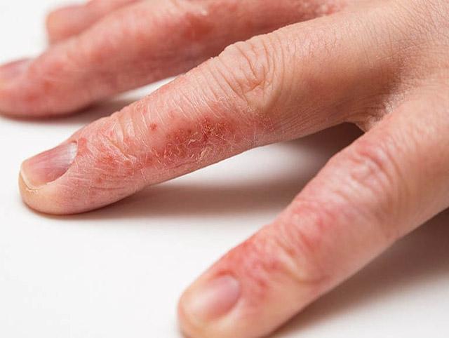 Chàm khô khiến cho cấu trúc da bị sừng hóa, bong tróc