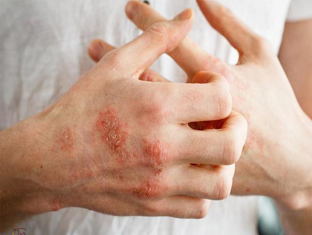Chàm khô ở tay rất thường gặp vì đây là nơi tiếp xúc nhiều với các tác nhân gây bệnh