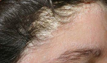 Hành trình chữa vảy nến da đầu