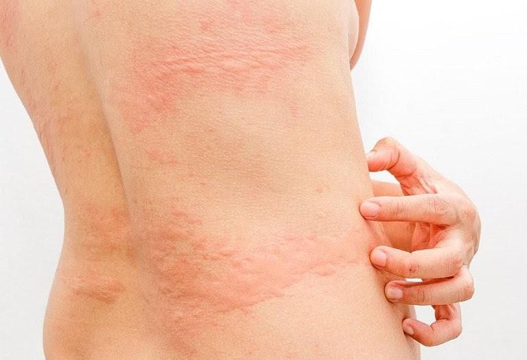 Các nốt sần mẩn ngứa kéo dài sẽ dẫn tới biến chứng như nhiễm trùng, sốc phản hệ,...