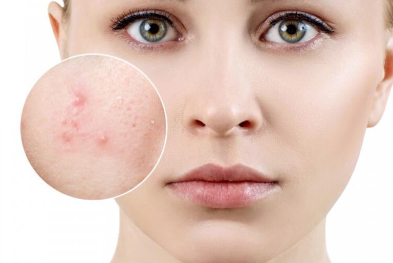 Chăm sóc da thường xuyên giúp loại bỏ được mụn ẩn dưới da