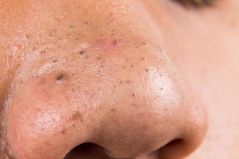 Mụn đầu đen thường mọc nhiều nhất ở mũi
