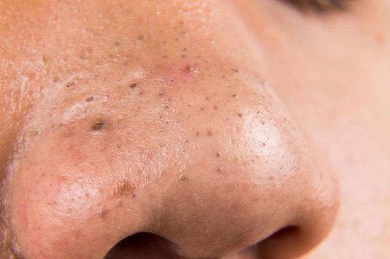 Mụn đầu đen thường mọc nhiều trên mũi