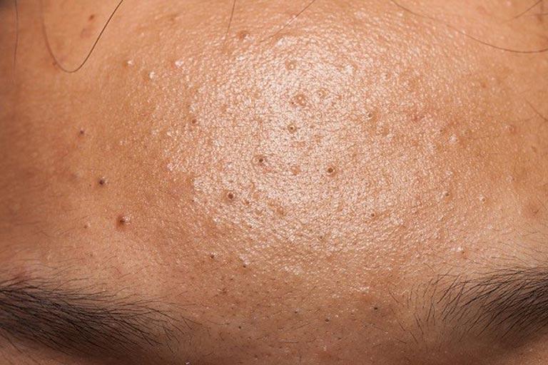 Những người có cơ địa da dầu dễ sinh mụn đầu đen hơn