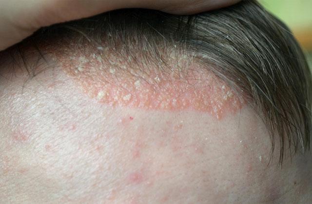 Nhiều người lầm tưởng vảy nến da đầu là gày nên sinh tâm lý chủ quan