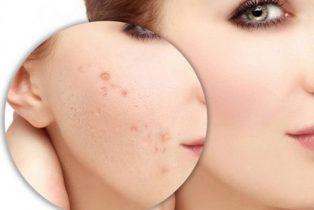 Chăm sóc da rất quan trọng trong việc loại bỏ mụn thâm