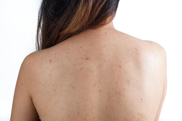 Mụn lưng có rất nhiều dạng nếu không được trị kịp thời gây nhiều biến chứng nguy hiểm