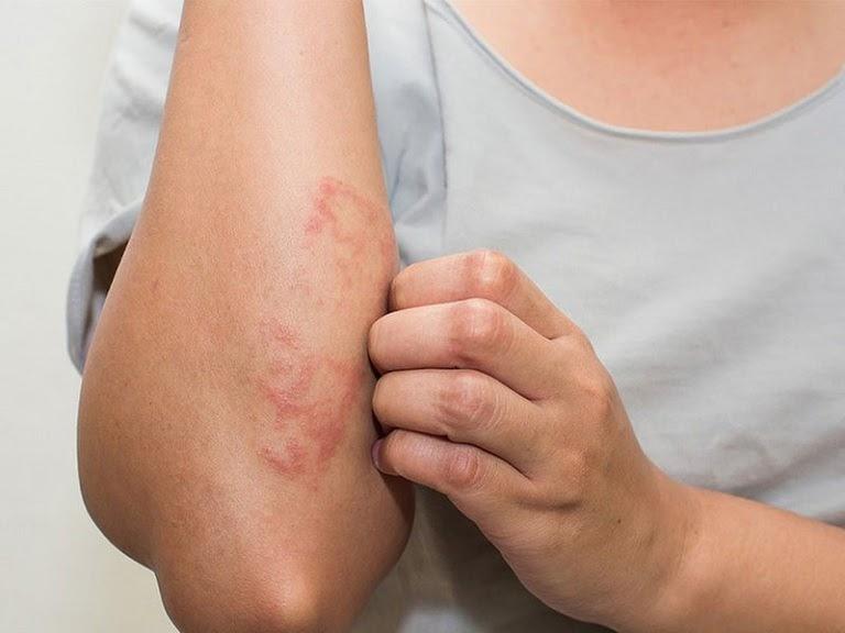 Viêm da mẩn ngứa là bệnh ngoài da gây nhiều ngứa ngáy khó chịu