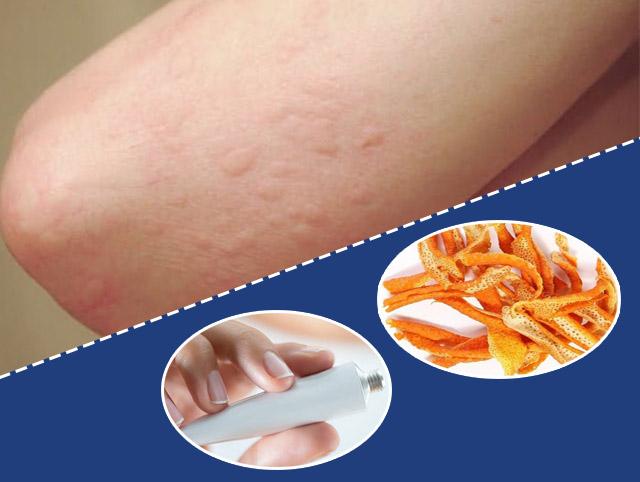 Lo ngại tác dụng phụ, hiệu quả không như mong muốn khi sử dụng thuốc bôi ngoài da và mẹo dân gian