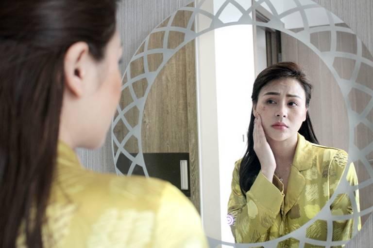 Áp lực công việc cùng sự thay đổi nội tiết tố sau khi sinh khiến Thu Trang bị nám, tàn nhang