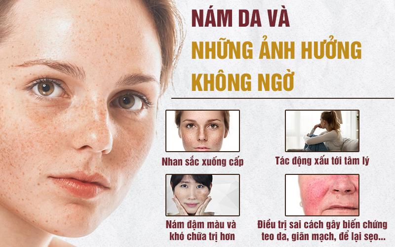 Nám da, tàn nhang và những hậu quả không ngờ tới