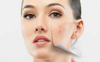 Cách đẩy mụn ẩn và chăm sóc da mụn hiệu quả