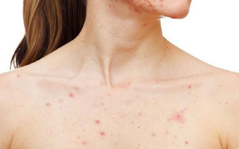 Nguyên nhân và cách điều trị tình trạng mọc mụn ở ngực