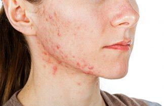 Viêm da tiếp xúc dị ứng ở mặt