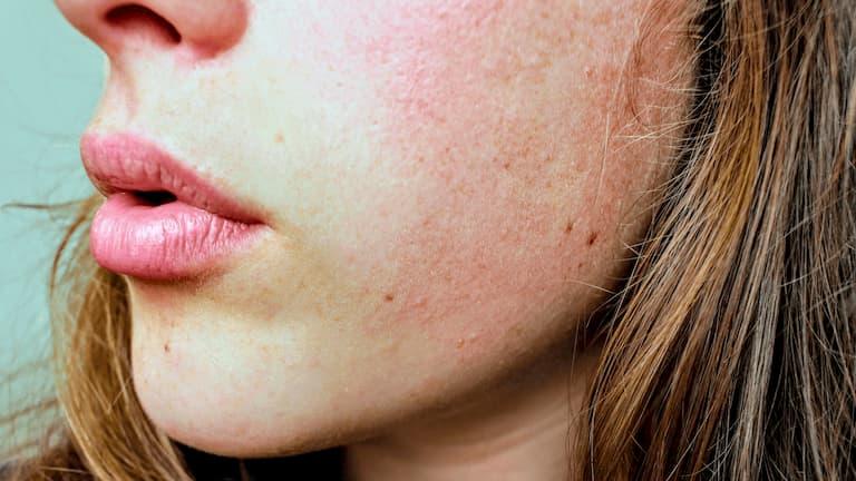 Bệnh gây lên những vết mẩn đỏ có khi có màu trắng đục