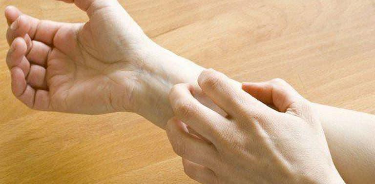 Bị vảy nến có thể gây ngứa và khó chịu