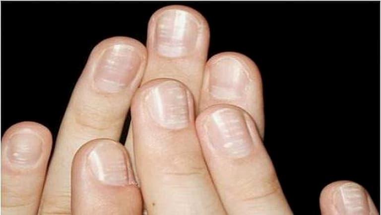 Biểu hiện bệnh khi móng tay bắt đầu xuất hiện những đốm trắng