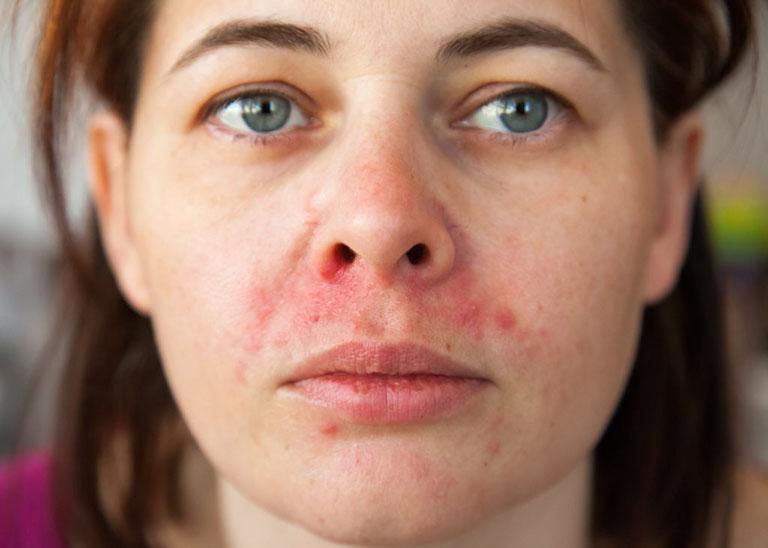 Biểu hiện của viêm da tiết bã là ửng đỏ và ngứa ngáy