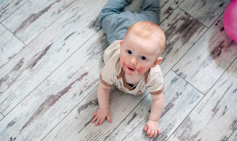 Có nhiều yếu tố khác nhau được xem là tác nhân gây bệnh viêm da dị ứng ở trẻ em