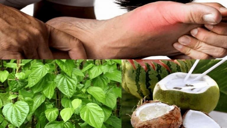 Kết hợp dùng dầu dừa và lá trầu không trị chàm
