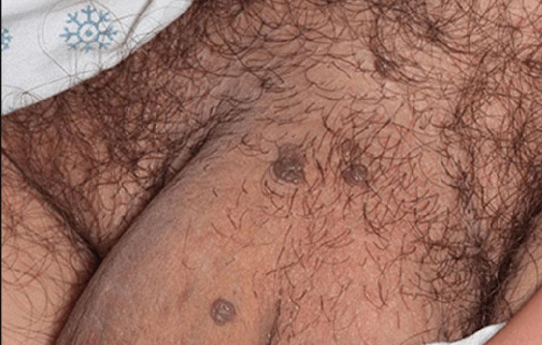 Hình ảnh mụn cóc sinh dục ở nam giới