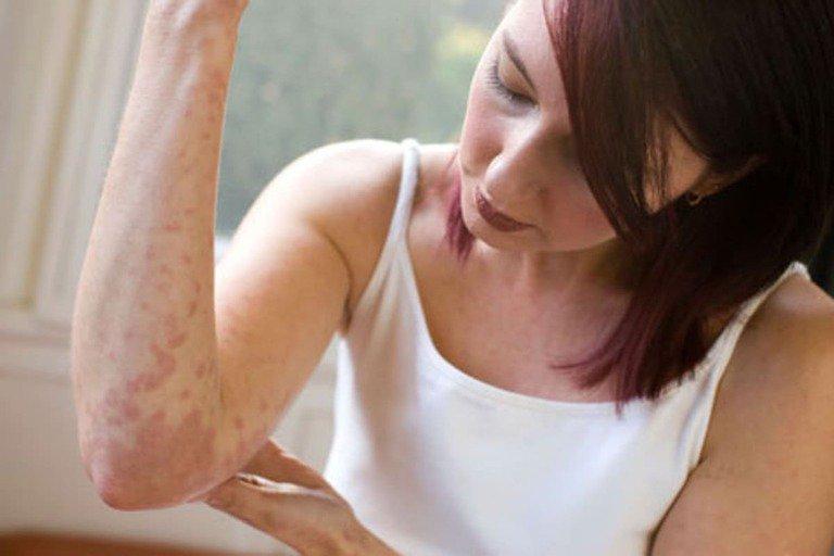 Nếu bệnh được phát hiện ở giai đoạn đầu, các triệu chứng mới khởi phát thì thời gian và hiệu quả điều trị sẽ khác với những người bị bệnh nặng