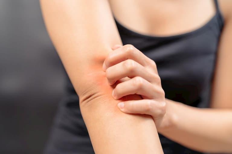 Thuốc được chỉ định điều trị một số bệnh ngoài da trong đó có chàm