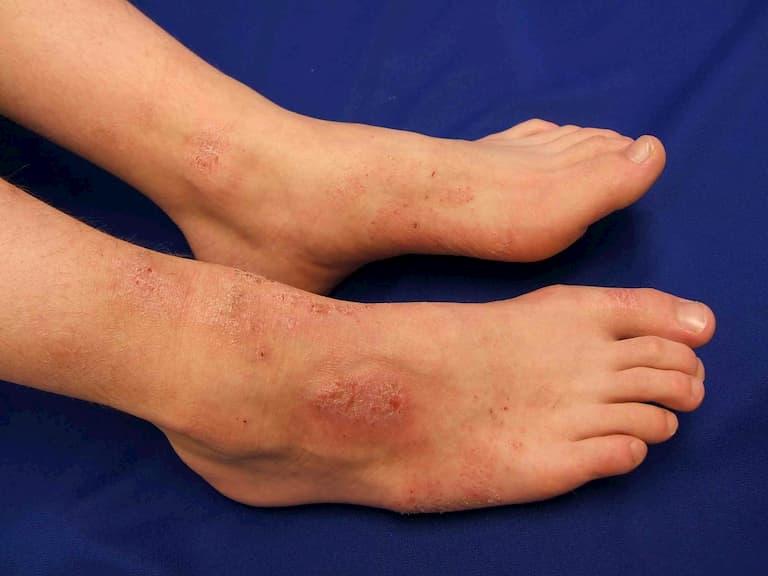 Thuốc được dùng trong chữa trị các bệnh ngoài da